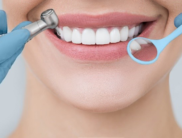 diseno-sonrisa-mas-dental-alginet