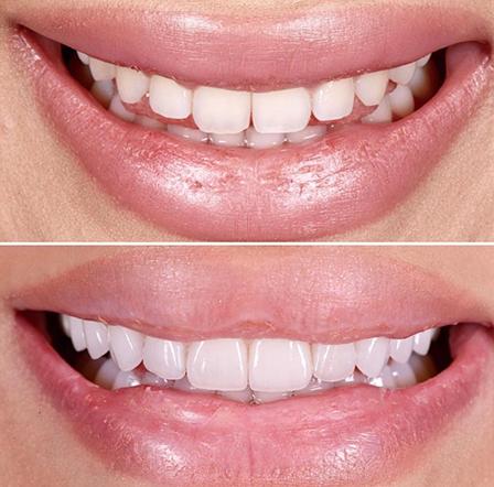 estetica-dental-alginet