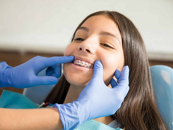 ortodoncia-tracional-niños