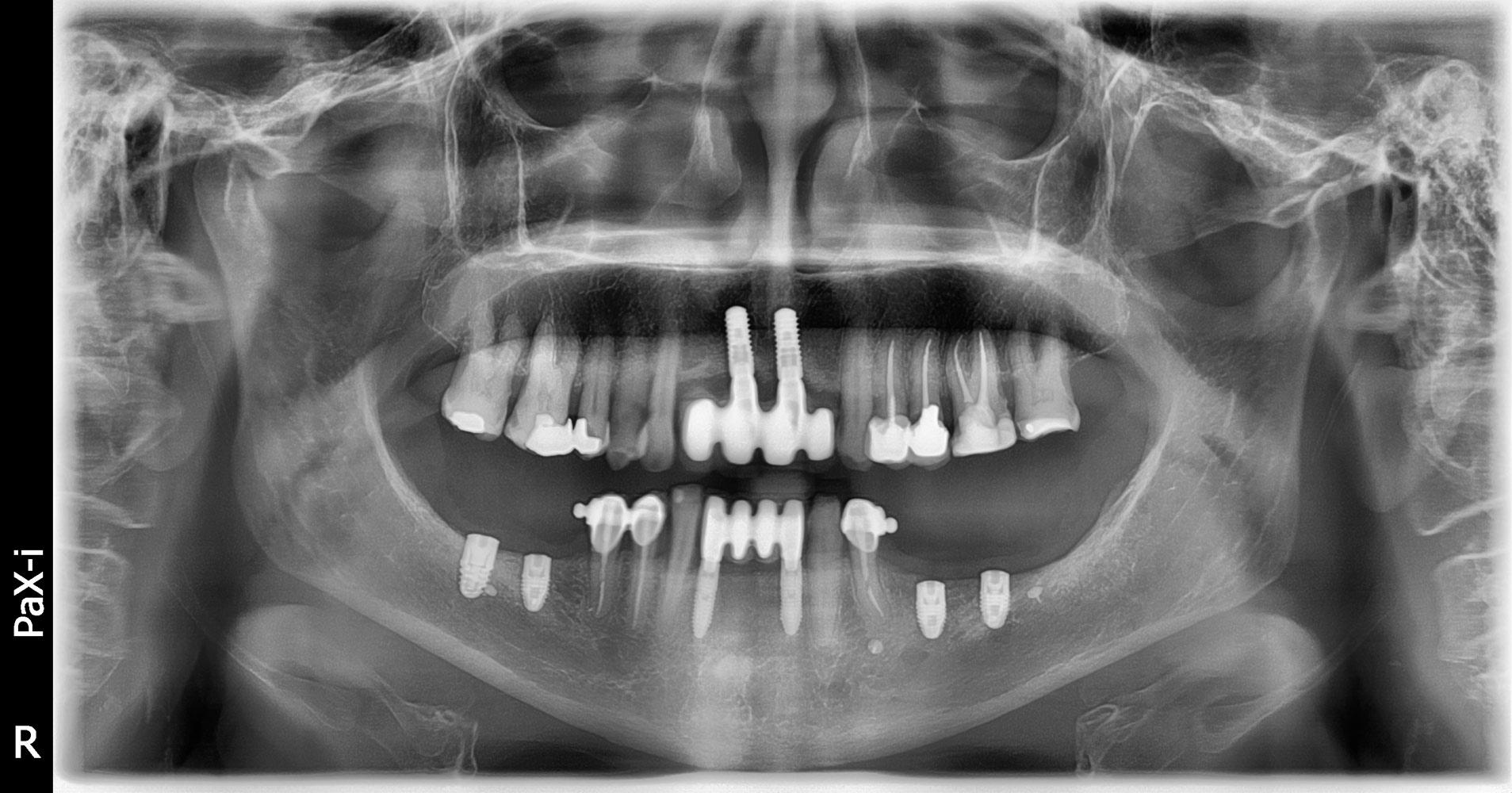 radiografia-2