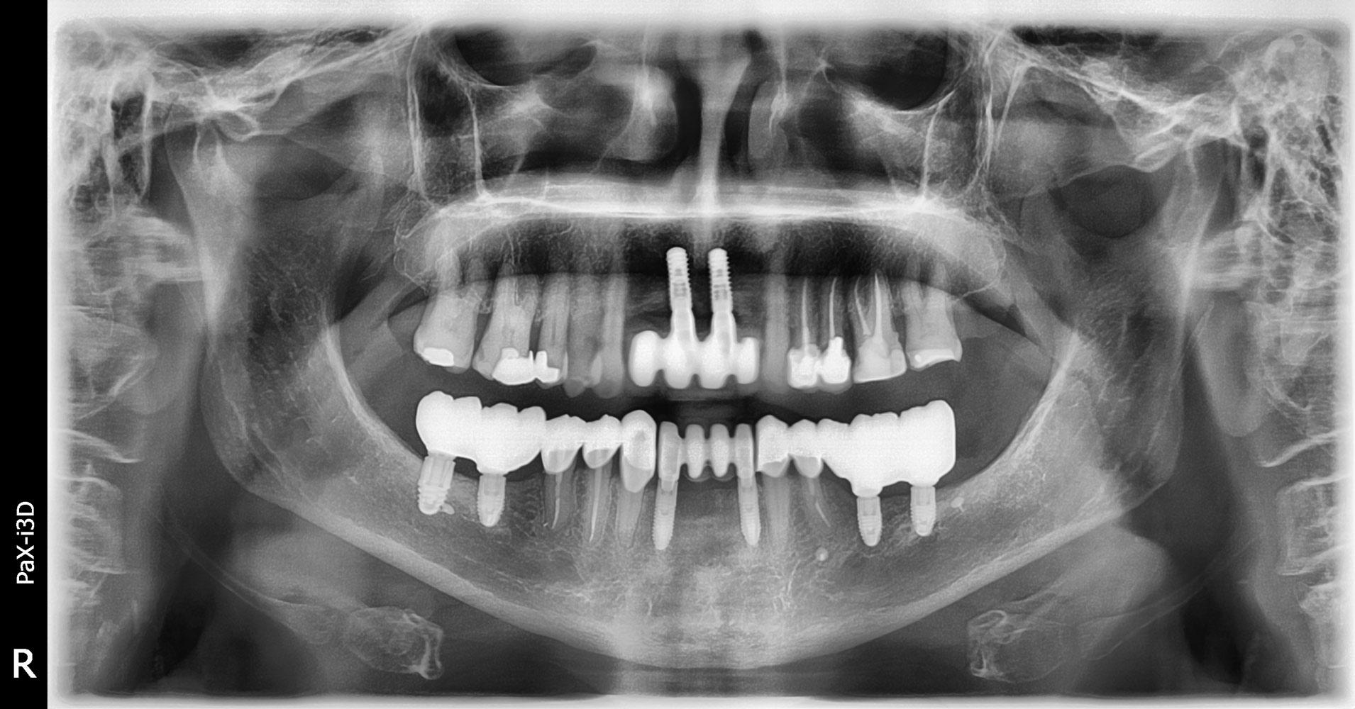 radiografia-3